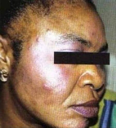 une femme sénégalaise dépigmentée
