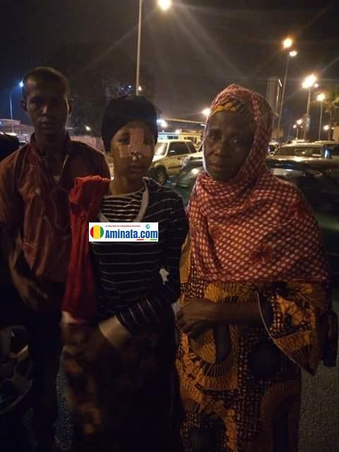 Aissatou Bella Diallo, défigurée par une grenade lacrymogène